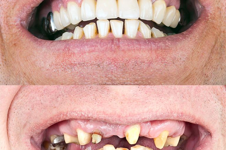 審美歯科とは